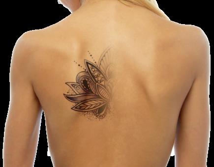 Αφαίρεση τατουάζ laser