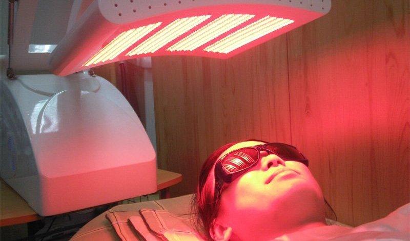 Η Φωτοδυναμική θεραπεία είναι αποτελεσματική για την ακμή