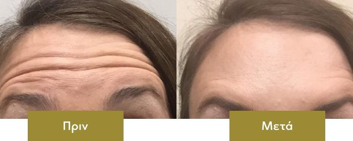 botox-before-after-02