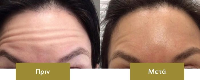 botox-before-after-03