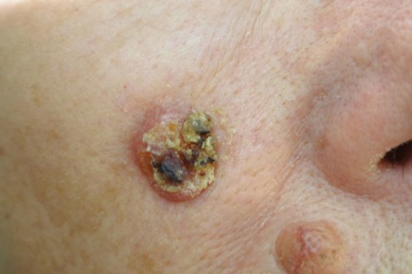 dermadvance-dermatoxeirourgiki-1