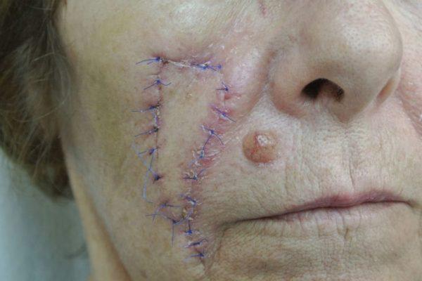 dermadvance-dermatoxeirourgiki-3