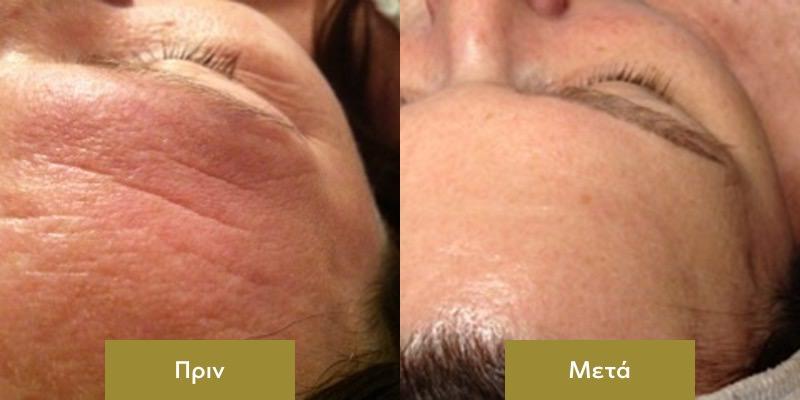 Rejuvenation Προσωπου με Dermalux Πριν και Μετα