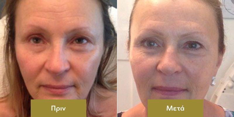 Rejuvenation Προσωπου με Dermalux Πριν και Μετα 2