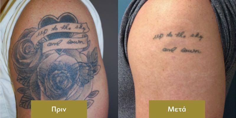 Αφαιρεση Τατουαζ στο Μπρατσο Πριν και Μετα