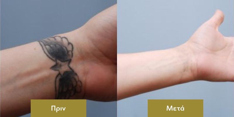 Αφαιρεση Τατουαζ Πριν και Μετα