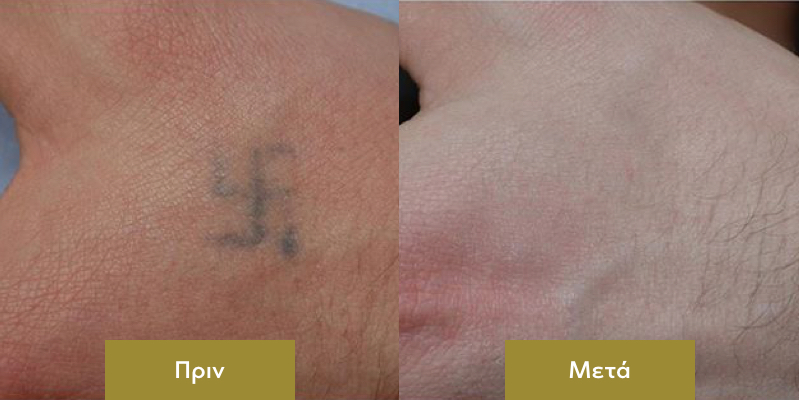 Αφαιρεση Τατουαζ με Λειζερ Περιστατικο Αποτελεσμα