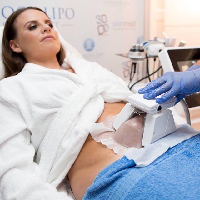 Κρυολιπολυση 3D Lipo Εφαρμογη