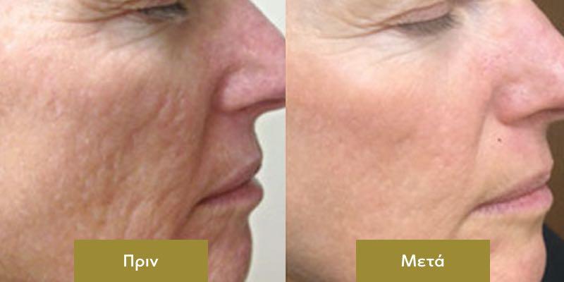DermaPen στο Προσωπο Πριν και Μετα